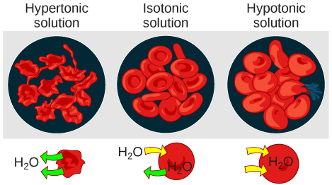 Illustration of red blood cells in hypotonic, isotonic, and hypertonic solutions. In the hypertonic solution, the cells shrivel and take on a spiky appearance. In the isotonic solution, the cells are normal in appearance. In the hypotonic solution, the cells swell and one has ruptured.
