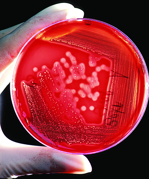A photo shows a gloved hand holding a petri dish with circular bacteria colonies growing in the growth medium.