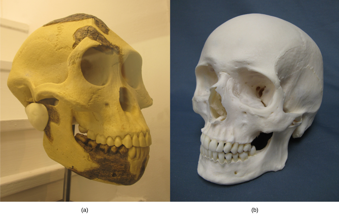 Photo A shows an A. afarensis skull, which is similar in shape but the forehead slopes back and the jaw juts out. Photo A shows a human skull.