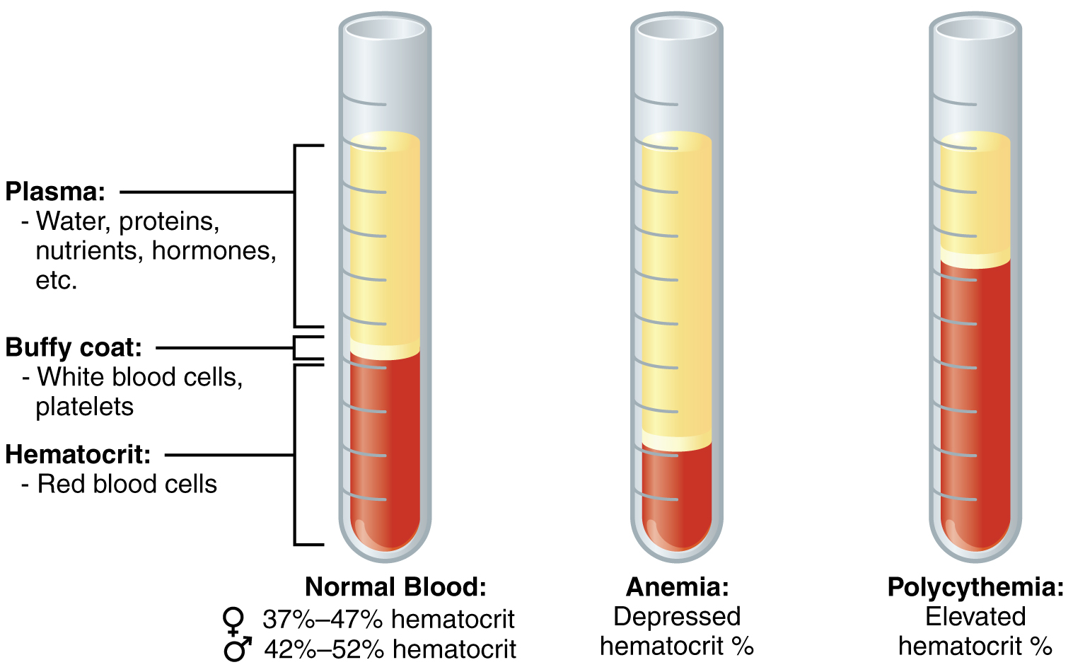 This figure shows three test tubes with a red and yellow liquid in them. The left panel shows normal blood, the center panel shows anemic blood and the right panel shows polycythemic blood.