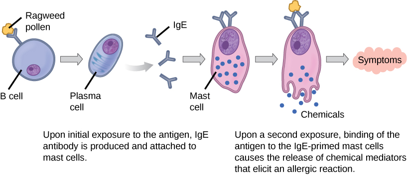 Illustration shows ragweed pollen attached to the surface of a B cell. The B cell is activated, producing plasma cells that release IgE. The IgE is presented on the surface of a mast cell. Upon a second exposure, binding of the antigen to the IgE-primed mast cells causes the release of chemical mediators that elicit an allergic reaction.