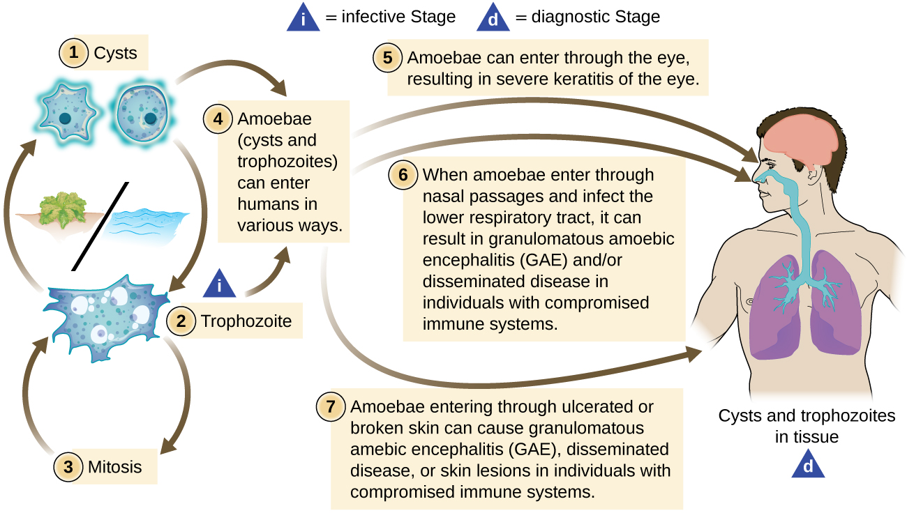 Live cycle of Acanthamoeba. In the water the cyst becomes a trophozoite. This then undergoies mitosis to form more trophozoites. Trophozoites can also become cysts. The amebae (cysts and trophozoites) can enter humans in various ways. Amoebae can enter through the eye, resulting in severe keratitis of the eye. Whn amoebae enter through nasal passages and infect the lower respiratory tract, it can result in granulomatous amebic encephalitis (GAE) and/or disseminated disease in individuals with compromised immune systems. Amoebae entering through ulcerated or broken skin can cause granulomatous amebic encephalitis (GAE), disseminated disease, or skin lesions in individuals with compromised immune systems.
