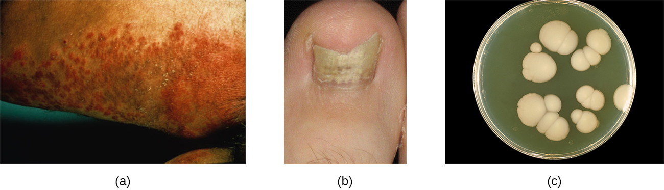 A) a dark, lumpy rash. B) a broken, yellow nail. C) large, white, fuzzy colonies on a plate.