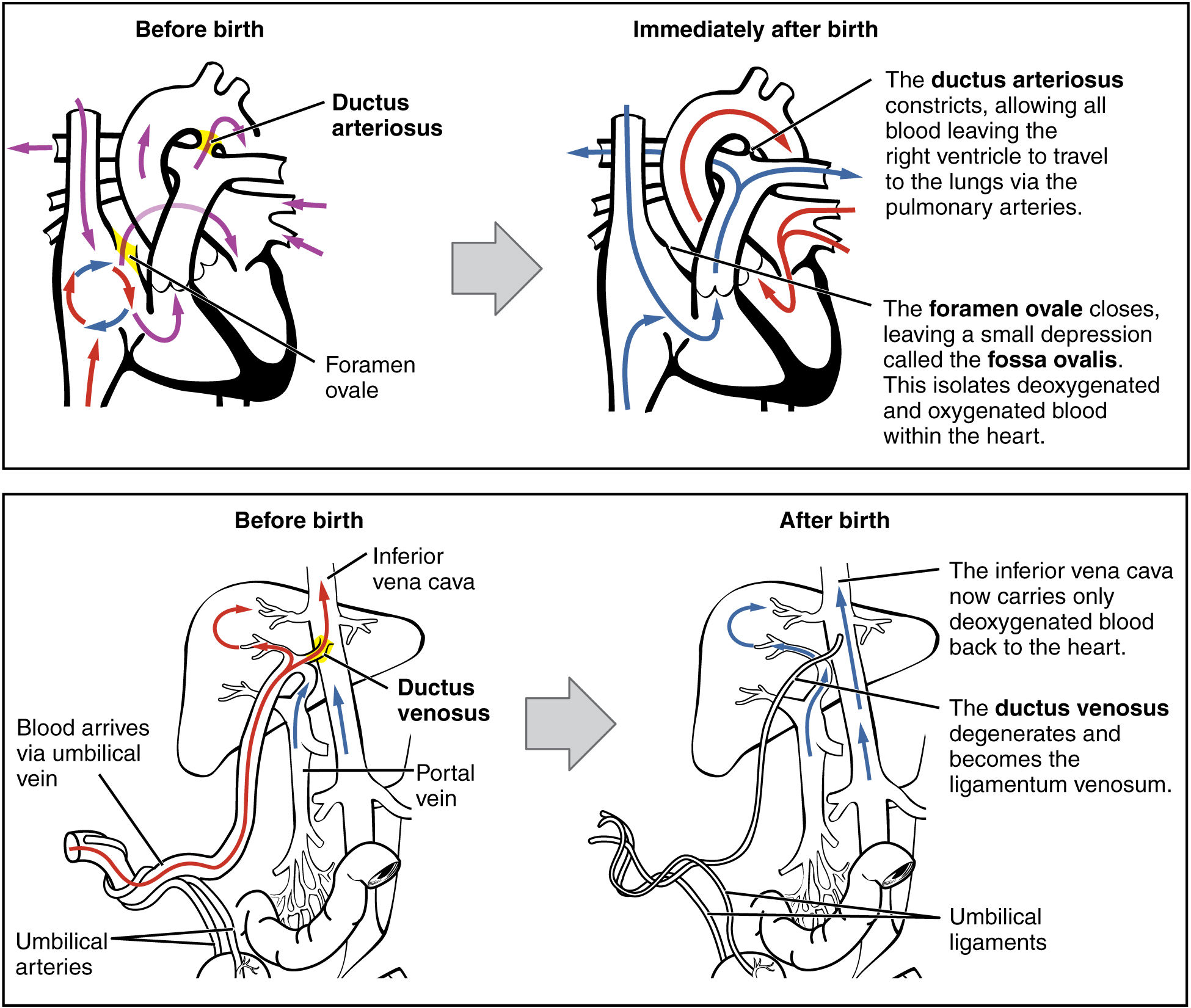 Figure 28.22 Neonatal Circulatory System