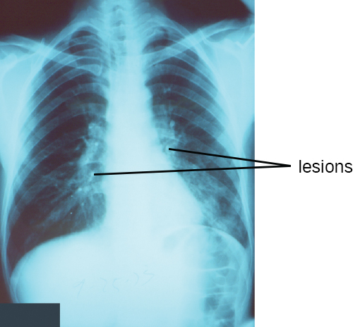 An X-ray that shows white bones on a black background. White regions within the lungs are labeled lesions.