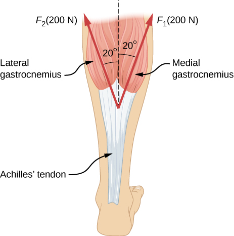 An Achilles tendon is shown in the figure with two forces exerted on it by the lateral and medial heads of the gastrocnemius muscle. F sub one, equal to two hundred Newtons, is shown as a vector making an angle twenty degrees to the right of vertical, and F sub two, equal to two hundred Newtons, is shown making an angle of twenty degrees left of vertical.