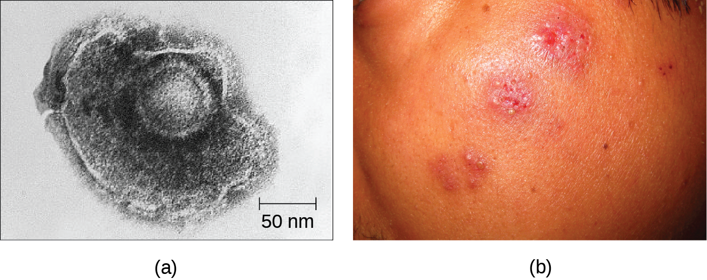 Figure a is an electron micrograph that shows a a shpere within a larger blob-shaped structure. Figure b shows raised red dots on a person's face.