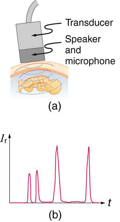 The first part of the diagram shows a rectangular shaped transducer with speaker and microphone sending spherical waves to produce echos from a fetus. The second part shows a graph of echo intensity versus time, with four sharp peaks.