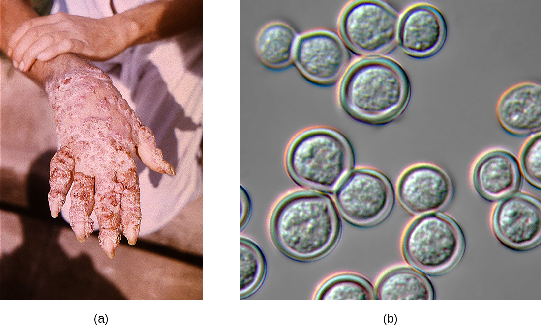 a) Large crusty legions on a deformed hand. B) A micrograph of round cells.