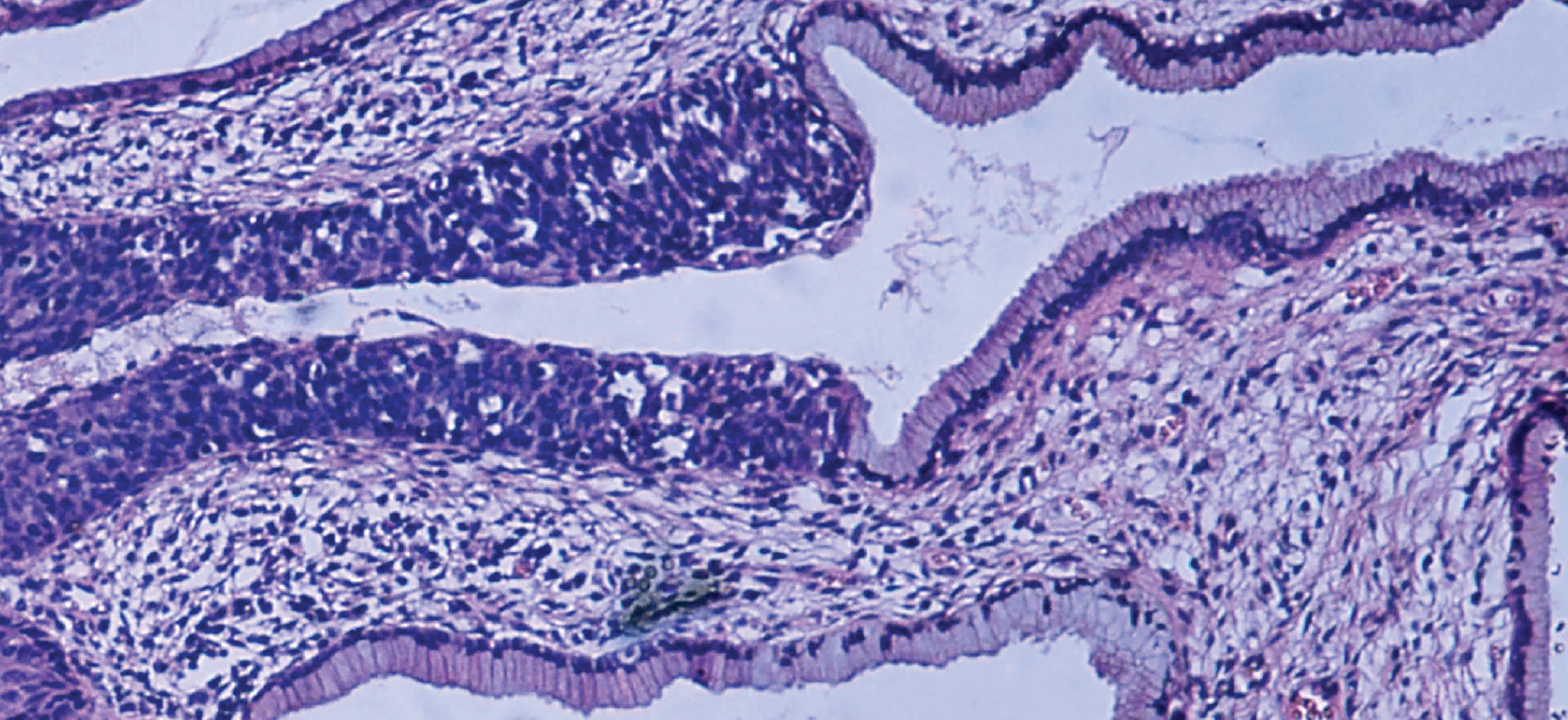 This micrograph shows tissue surrounding several empty spaces. The epithelial tissue occurs at the border between the rest of the tissue and the empty spaces. The normal epithelium is composed of rectangular-shaped cells neatly organized side by side. Dark purple nuclei are clear at the bottom of the epithelial cells, where they attach to the rest of the tissue. The abnormal epithelium appears as a tangled area of purple nuclei, much thicker than the normal epithelium although no distinct cells are discernible.