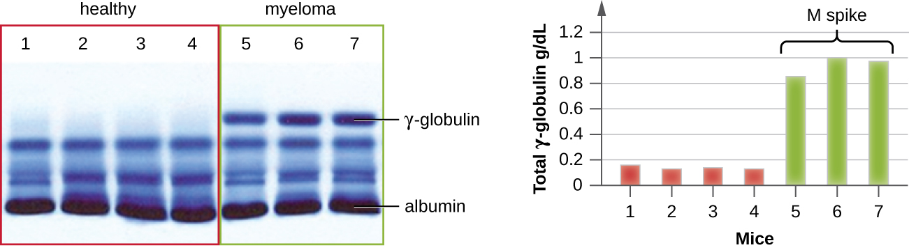 Electrophoresis showing 4 healthy patterns and 3 examples of those with myeloma. All 7 lanes contain multiple blue bands with a thick band labeled albumin. The myeloma samples have a dark band labeled gamma-globulin, while the healthy samples do not have a band here. A graph showing the total gamma-globulin amount (g/dl) in each of these samples. The healthy samples have approximately 0.1 while the myeloma samples range from 0.8 to 1.