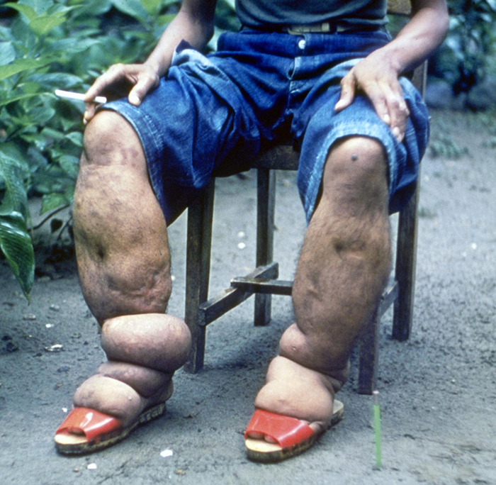 A photo of a person with extremely swollen lower legs.