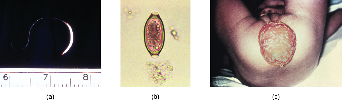 a) a micrograph of a worm about 2 inches in length. B) a micrograph of an oval cell. c) A photo of a large protruding sac from the anus.