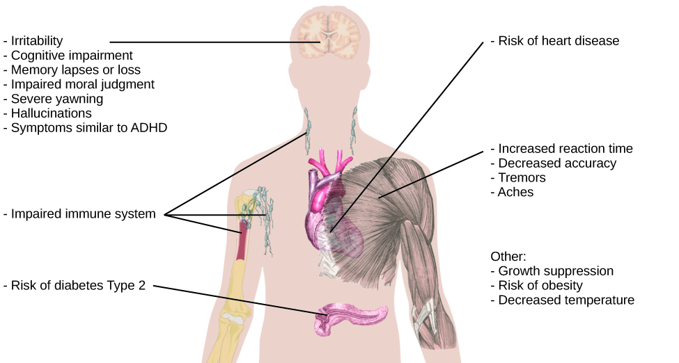 "An illustration of the top half of a human body identifies the locations in the body that correspond with various adverse affects of sleep deprivation. The brain is labeled with ""Irritability,"" ""Cognitive impairment,"" ""Memory lapses or loss,"" ""Impaired moral judgment,"" ""Severe yawning,"" ""Hallucinations,"" and ""Symptoms similar to ADHD."" The heart is labeled with ""Risk of heart disease."" The muscles are labeled with ""Increased reaction time,"" ""Decreased accuracy,"" ""Tremors,"" and ""Aches."" There is an organ near the stomach labeled ""Risk of diabetes Type 2."" Various parts of the neck, arm, and underarm are labeled ""Impaired immune system."" Other risks include ""Growth suppression,"" ""Risk of obesity,"" ""Decreased temperature."""