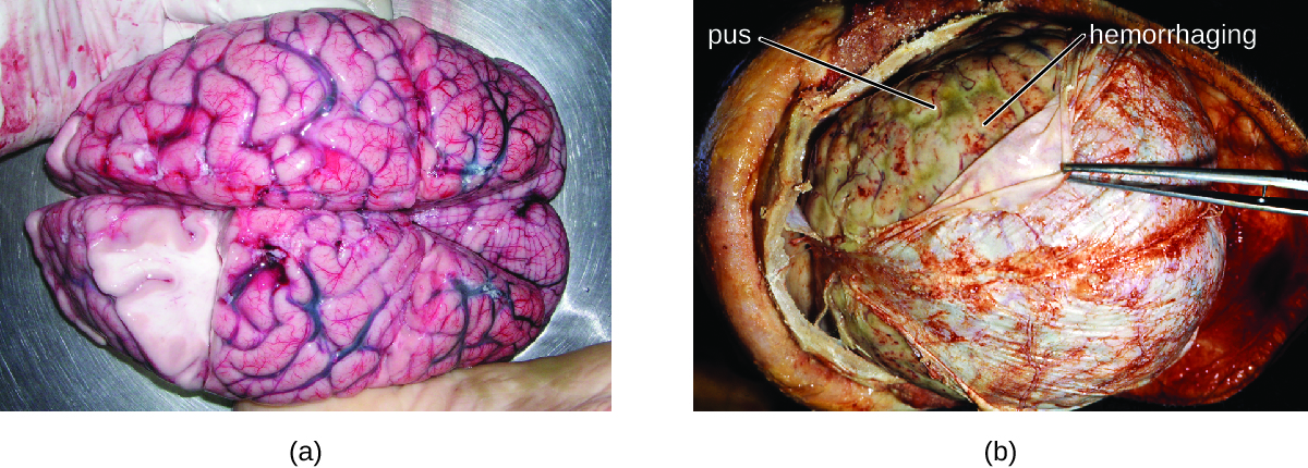 a) Photo of brain. B) Photo of think layer on top of brain being pulled back by forceps.