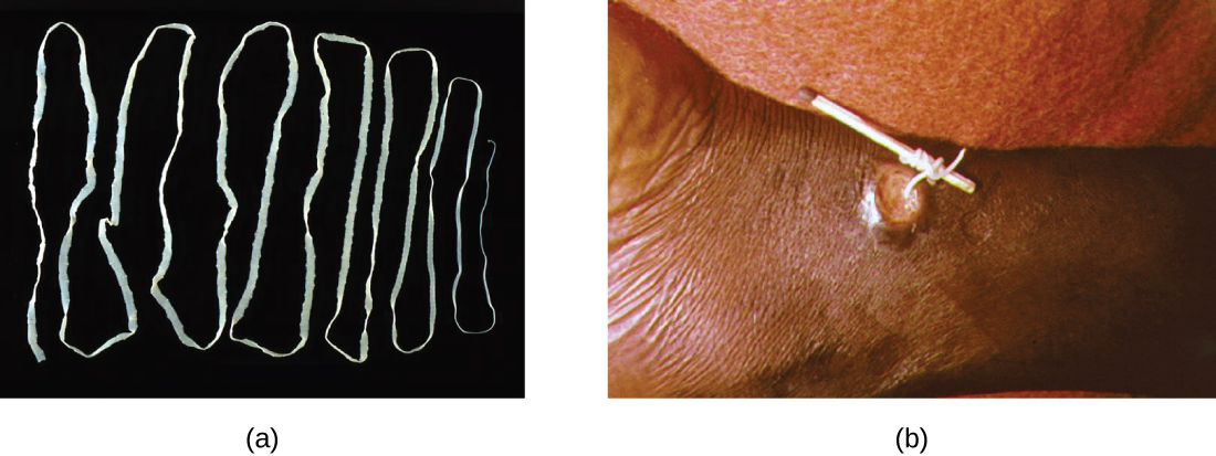 Figure a is a photograph of a long, flat, white worm folded back and forth on a black background. Figure b shows a lesion on a patient. A worm is being pulled out of the lesion and being wrapped around a matchstick