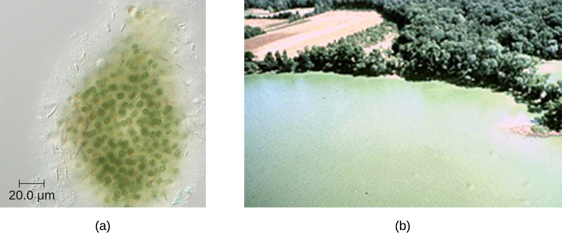 a) A micrograph of green spherical cells. B) A photo of a green lake
