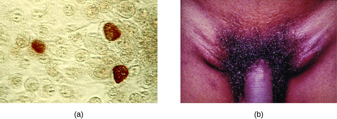 a) Micrograph showing brown coloration inside cells. B) photo of a swollen region on either side of the penis.
