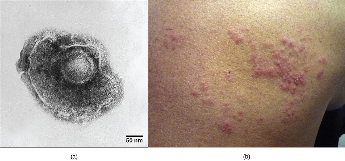 Part a shows a micrograph of the varicella-zoster virus, which has an icosahedral capsid surrounded by an irregularly shaped envelope. Part b shows a red, bumpy shingles rash on a person's face.