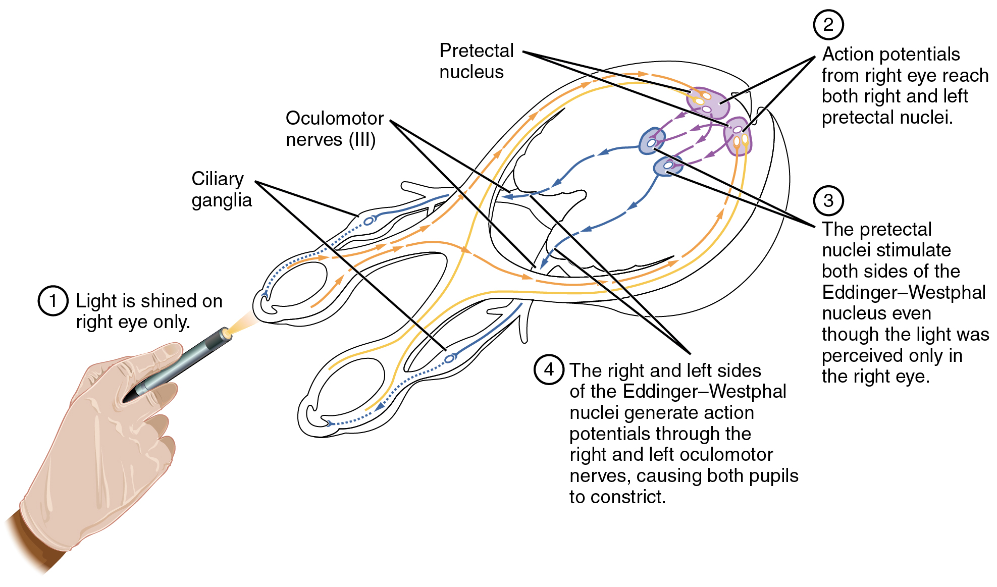 This diagram shows the connections between the different nerves and pathways in the eyes. A hand is shown shining a light on the right eye, and arrows and text callouts indicate the different pathways that are activated.